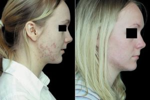 Is it possible to get RID of adult acne in 6 weeks? We put Omnilux light therapy to the test – Mirror Online