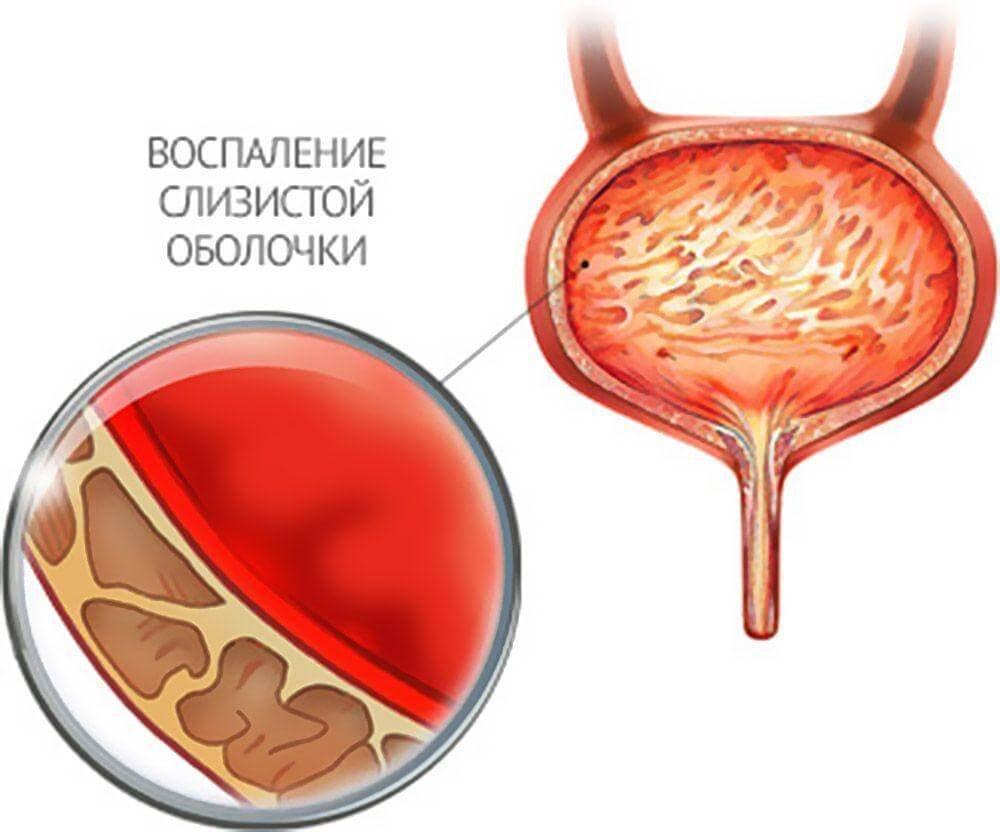 A Cannefron segít ha a prostatitis