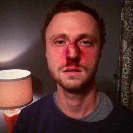 Broken Nose