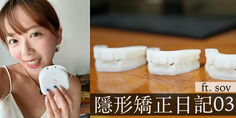 SOV隱形矯正日記 矯正期間根管治療/臨時假牙經驗分享