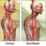 C-Spine