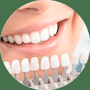 professional-teeth-whitening - Lincoln. NE Dentist