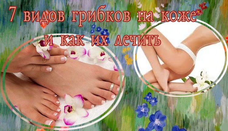 грибковые заболеванимя