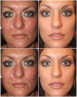 LDC_acne_scars_2