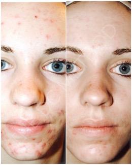 LDC_acne_scars_3