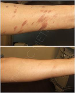 LDC_laser_scars_010