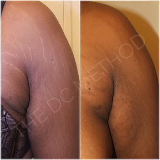 LDC_stretch_marks_7