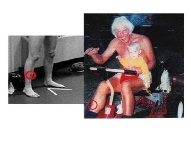Elvis and Jesse matching scar on right leg from Lucilia