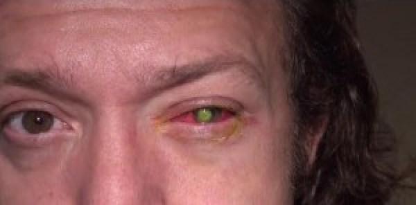 φακούς επαφής 2