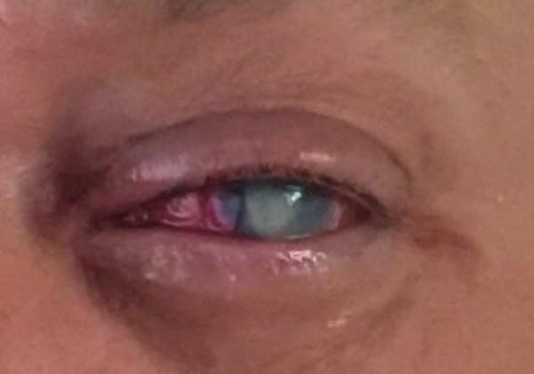 φακούς επαφής 4