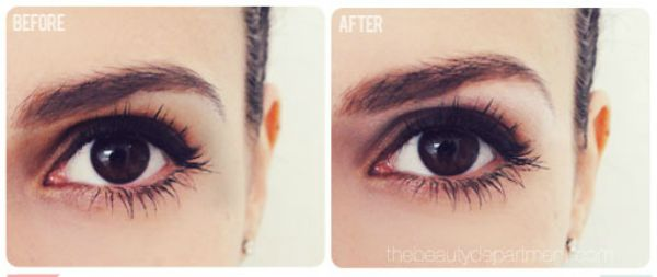 1443454620-brow-bone-lift-before-after