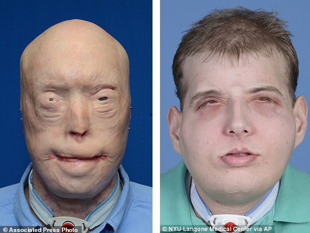This combination of photos provided by the New York University Langone Medical Center shows Patrick Hardison before and after his facial transplant surgery in New York. Hardison was burned Sept. 5, 2001, in Senatobia, Miss. A 27-year-old father of three at the time who'd served for seven years as a volunteer firefighter, he entered a burning house to search for a woman. The roof collapsed, giving him third-degree burns on his head, neck and upper torso. (Mary Spano/Eduardo D. Rodriguez/Wyss Department of Plastic Surgery/NYU Langone Medical Center via AP)