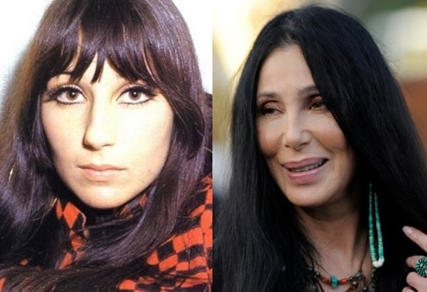 Cher-plastic-surgery_b1f79