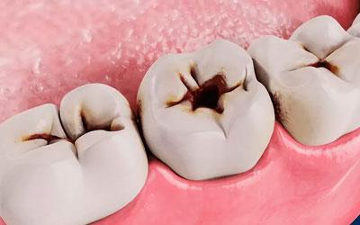 Невылеченный глубокий кариес - Стоматология Линия Улыбки