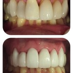 dental before and after image