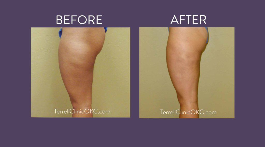 Inner and Outer Thigh Liposuction   Terrell Clinic