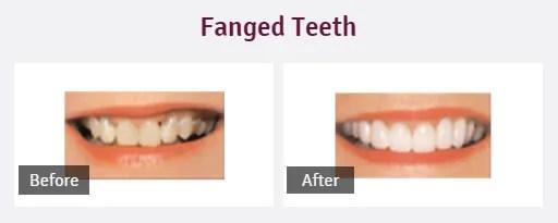 Dental smile design Colchester, Essex, The Avenue Dental Practice