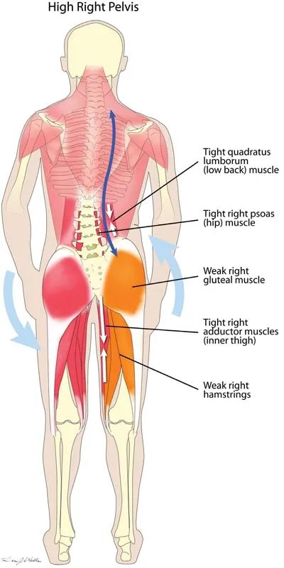 Back Muscle Pain - Physio Works...
