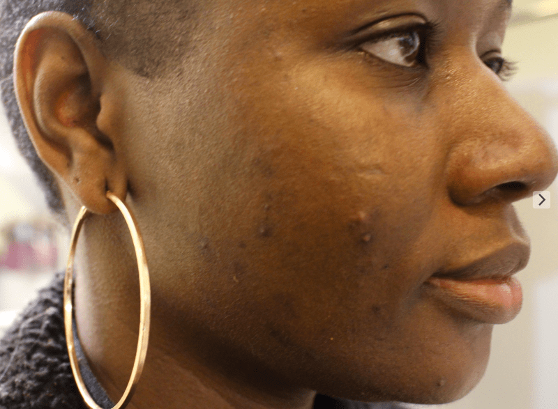 13 Skincare Products Every Black Girl Should Use To Get Rid Of Dark