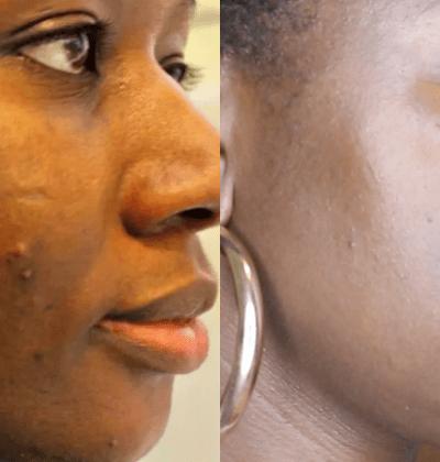 how-i-got-rid-of-my-dark-spots