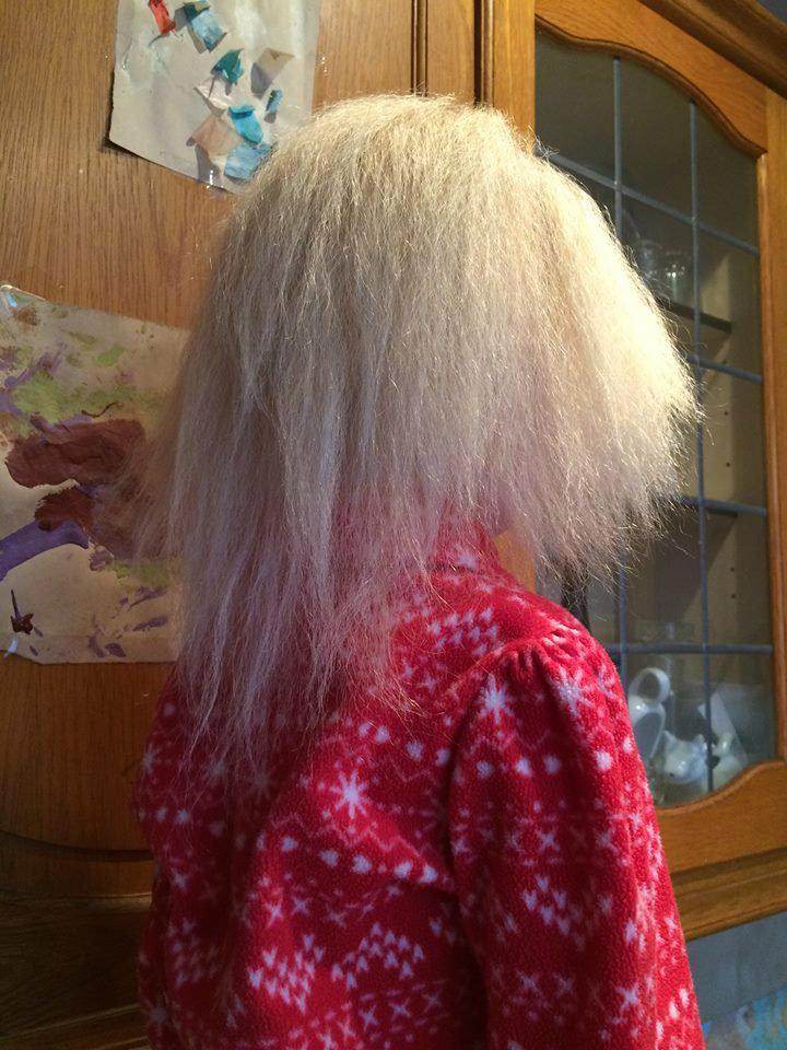 uncombable-hair-syndrome