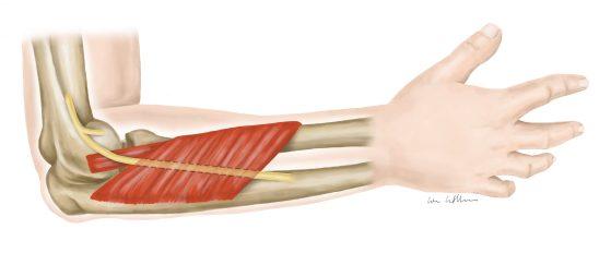 Eine Illustration von Lisa Cuthbertson die die Anatomie eines Unterarms zeigt, der Supinator-Syndrom hat