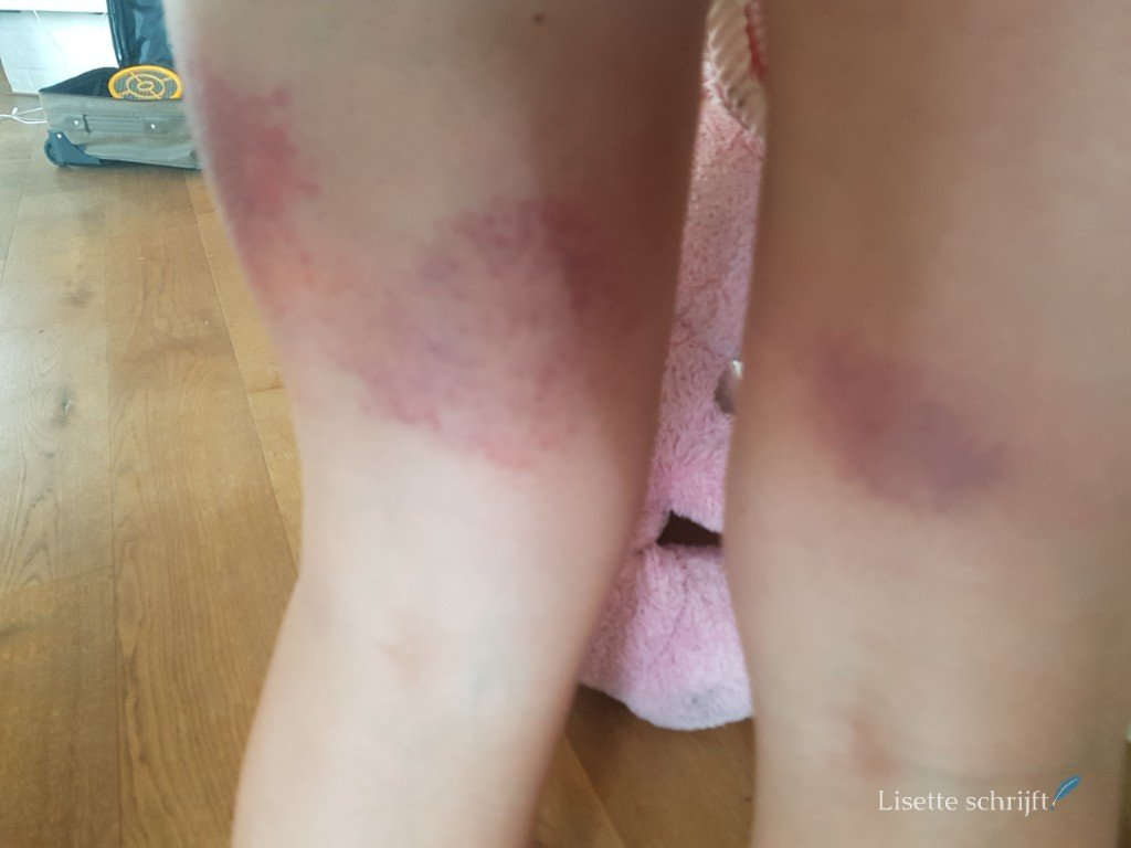 allergische reactie op muggen