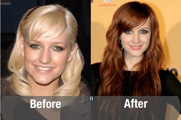 Ashlee Simpson Plastic Surgery Transformation
