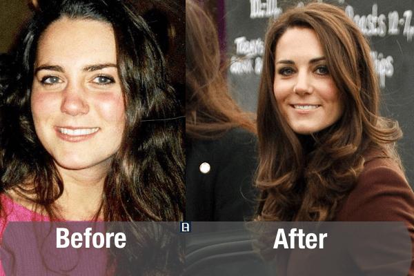 Kate Middleton Plastic Surgery Transformation