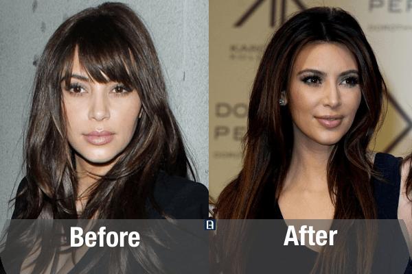 Kim Kardashian Plastic Surgery Transformation