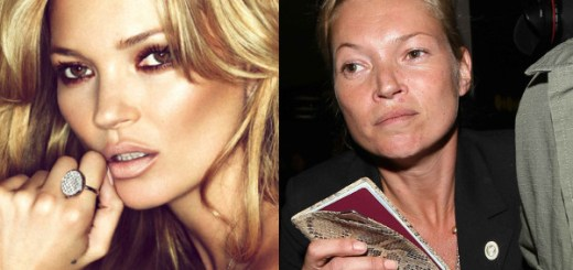 Kate Moss Before and After Drugs