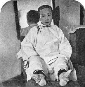 igh Caste Chinese Lady's dainty lilly feet, caused by foot binding