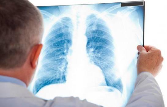 Recomendaciones para pacientes con hipertensión pulmonar en época de COVID-19