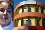 Congreso de Prensa condena atropello a periodista