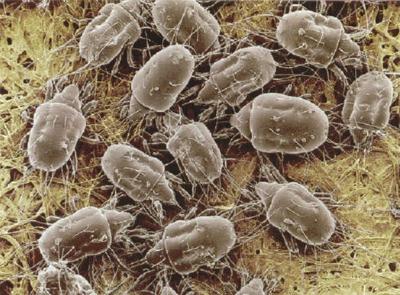Dust Mites