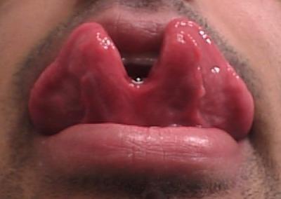Tongue Split