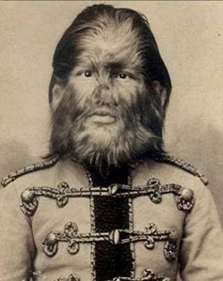 Freak Show: The 36 Most Famous Circus Sideshow Performers