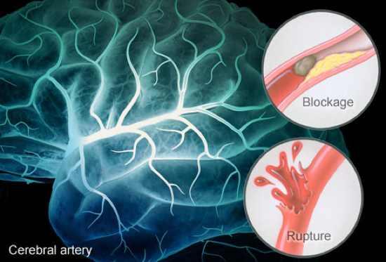 Brain Stroke Symptoms