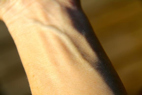 Blue veins