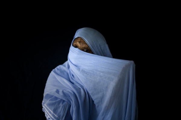 Acid-Disfigurement-For-Women-Pakistan