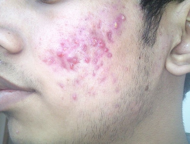 I_have_to_much_pimple_what_should_I_do_2013-12-20_12-57