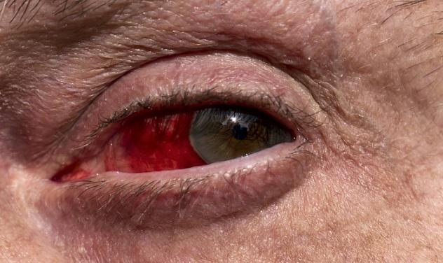 Infected Eye