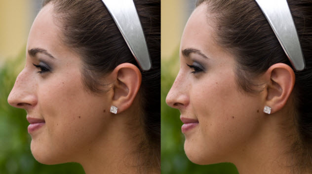 7-before-after-nose-job_000007132977_Small
