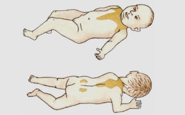 3a-newborn-brown-fat-areas