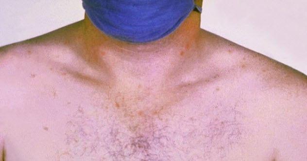 6-typhoid-fever