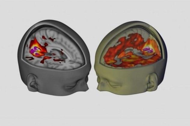 Normal vs LSD Brain