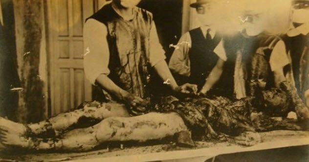 10 Atrocious Experiments Conducted By Unit 731 - Listverse
