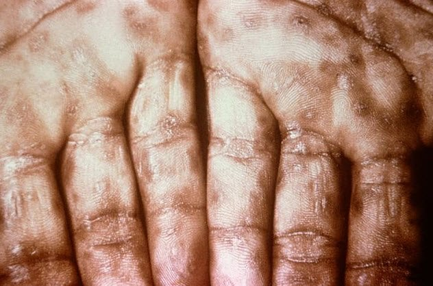 6-secondary-syphilitic-infection