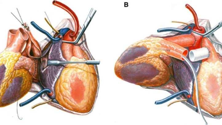 عملية إعطاء مريض قلبين