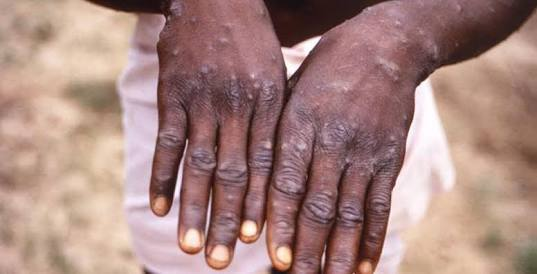 MonkeyPox Outbreak: Things You Need To Know About The MonkeyPox Virus